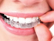 Quick Tips for First Time Invisalign Patients